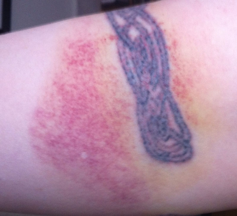 Bruised Tattoo