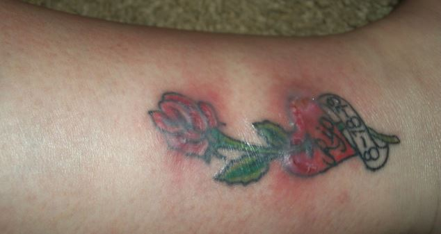 tattoo redness