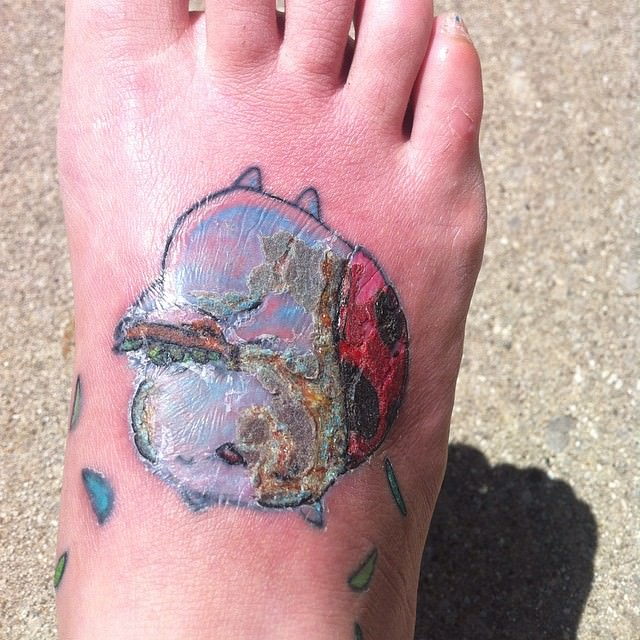 Infected and Swollen Tattoo