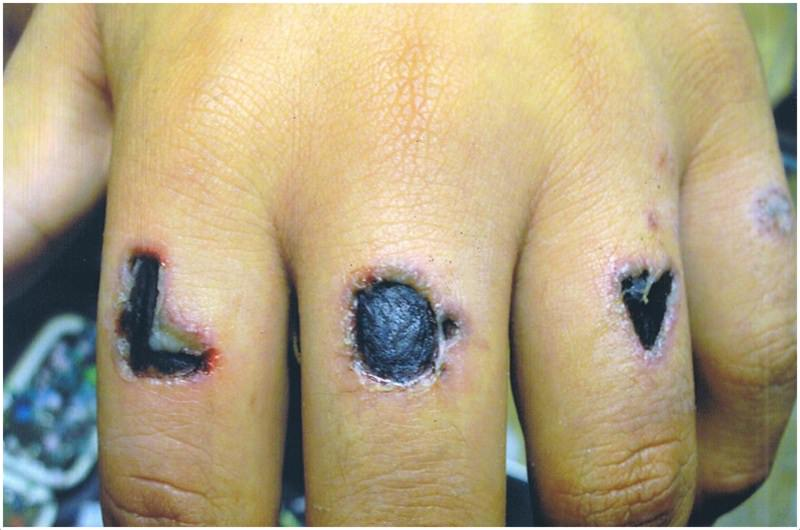Infected Tattoos Signs Symptoms How To Treat Infections