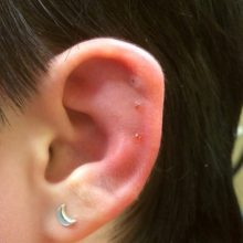 Infected Cartilage Piercings: Causes, Symptoms & Treatment