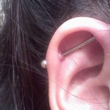 Treating An Infected Ear Piercing Without It Closing