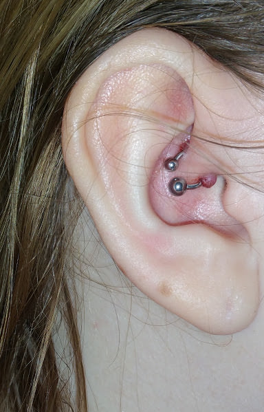 Infected Ear Piercings – Causes & Treatment