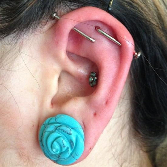 Industrial Piercing Infection 1