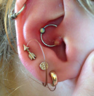 Infected Daith Piercing