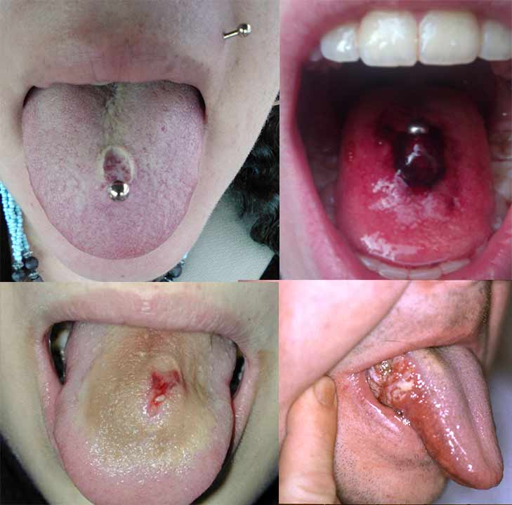 Infected Tongue Piercings Symptoms Treatment