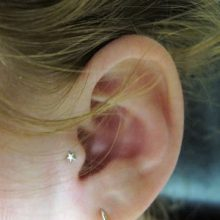 Tragus Piercings For Migraines