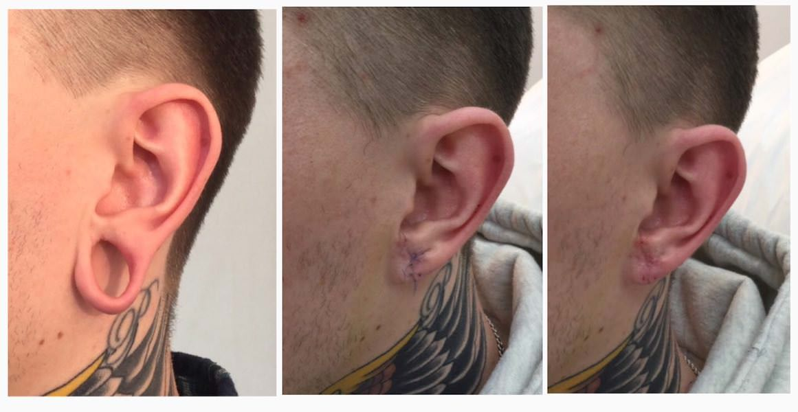 Ear Stretching – How To Gauge Your Ears