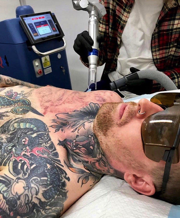 How Many Tattoo Removal Sessions Will I Need?