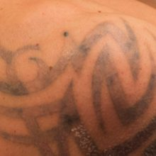Why Do People Choose To Remove Their Tattoos?