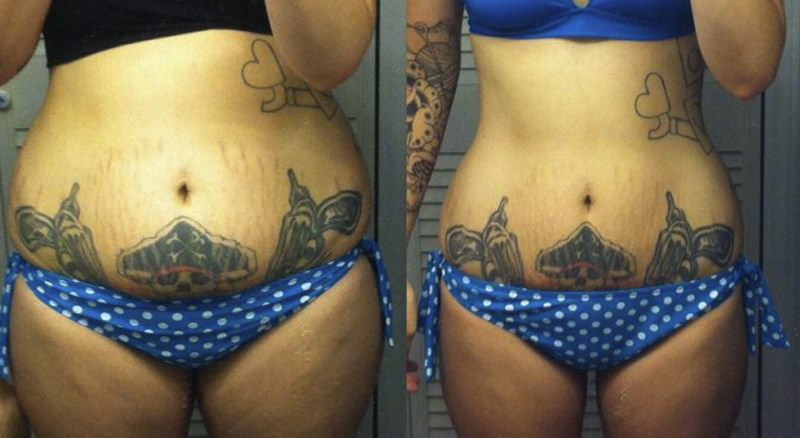 Tattoos After Weight Loss