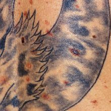 Can You Get A Tattoo Over Moles?