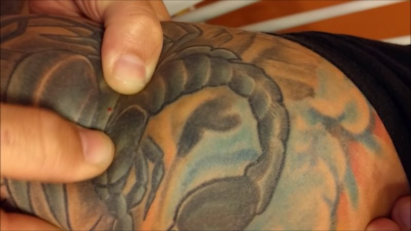 Ingrown Hair On Tattoo