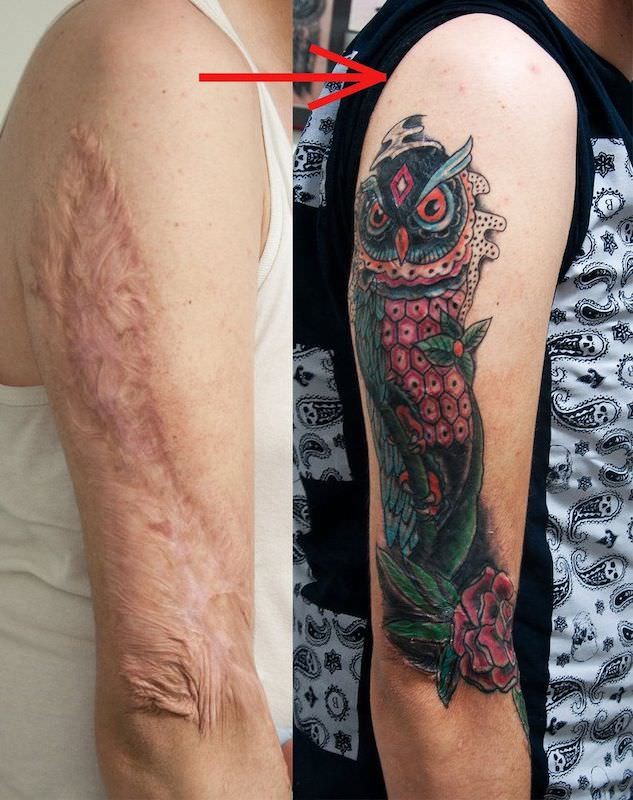 Can You Tattoo Over Scars & Scar Tissue?
