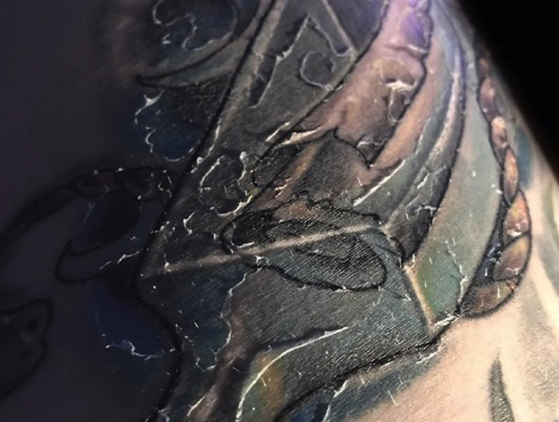 Why Do Tattoos Peel During Healing?