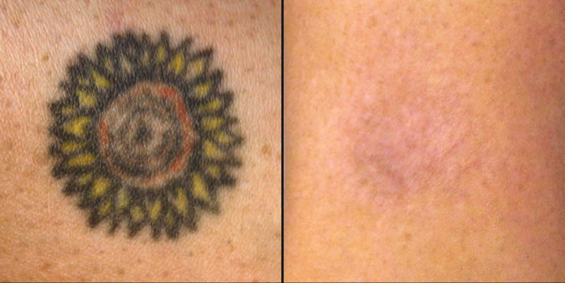 Will Tattoo Removal Leave A Scar?