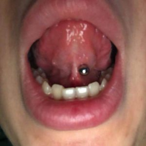 Why Does My Tongue Piercing Hurt At The Bottom?
